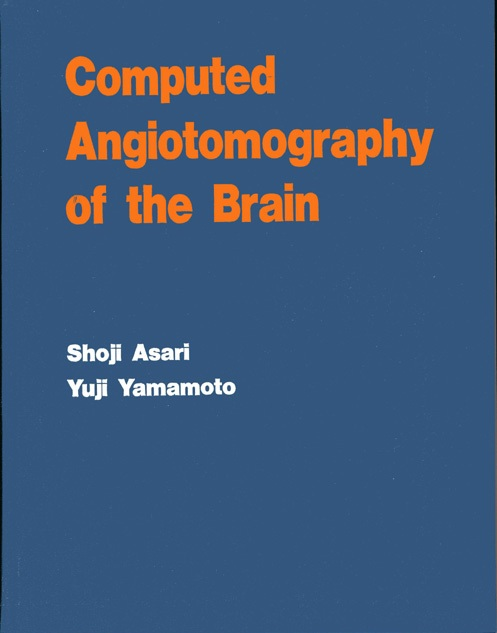 Computed Angiotomography of the Brain